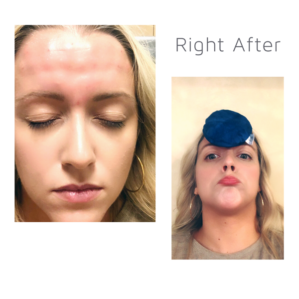 Five Questions with Dr. Miller About Botox for Migraines ...